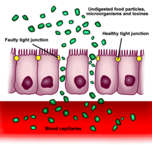 Increased_intestinal_permeability